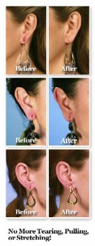 EAR LIFT 6 SET UPGRADE